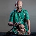 """El escepticismo en torno al primer """"trasplante de cabeza"""""""
