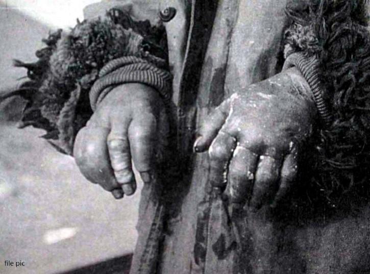 manos congeladas experimento Unidad 731