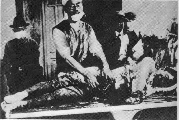 viviseccion de un prisionero