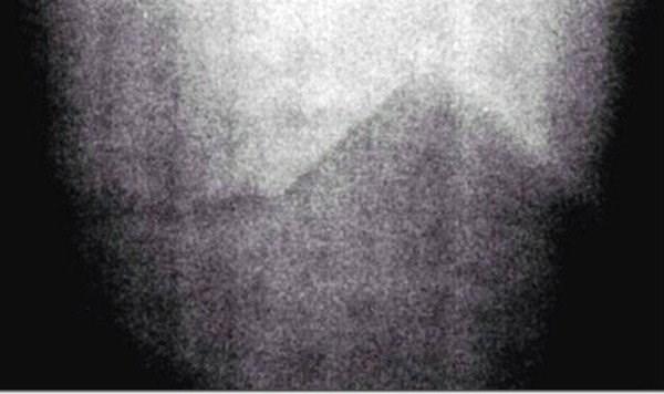 apollo 17 piramide en la luna