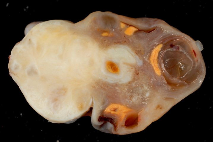 fibroma ovarico