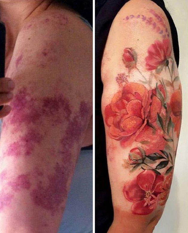 marcas de nacimiento tatuajes (10)