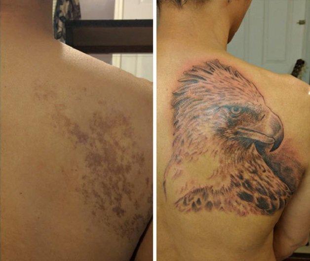 marcas de nacimiento tatuajes (12)