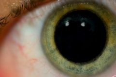 pupila dilatada alucinaciones