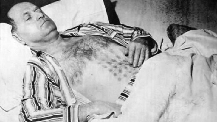 Stefan michalak quemaduras sobre el pecho