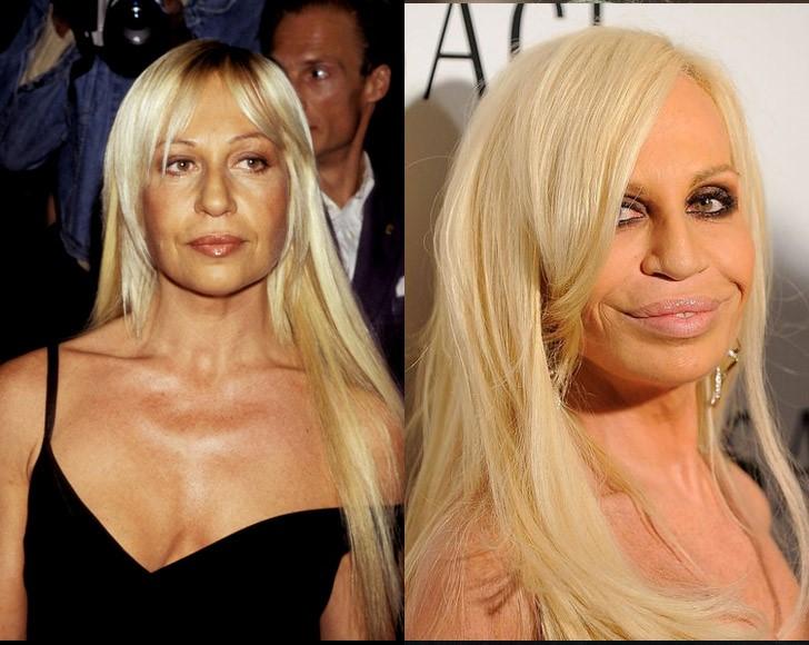 Donatella versace antes y despues de cirugias plasticas