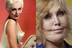 Kim novak antes y despues cirugias plasticas