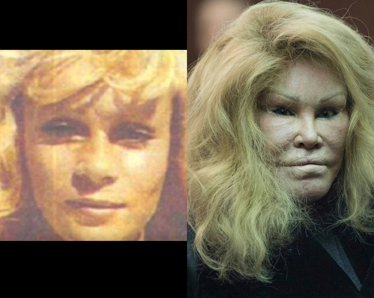 Cirugias plasticas jocelyn wildenstein antes y despues