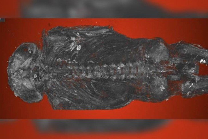 Feto con anencefalia del antiguo egipto