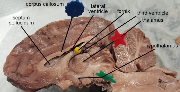 Cuerpo calloso cerebro
