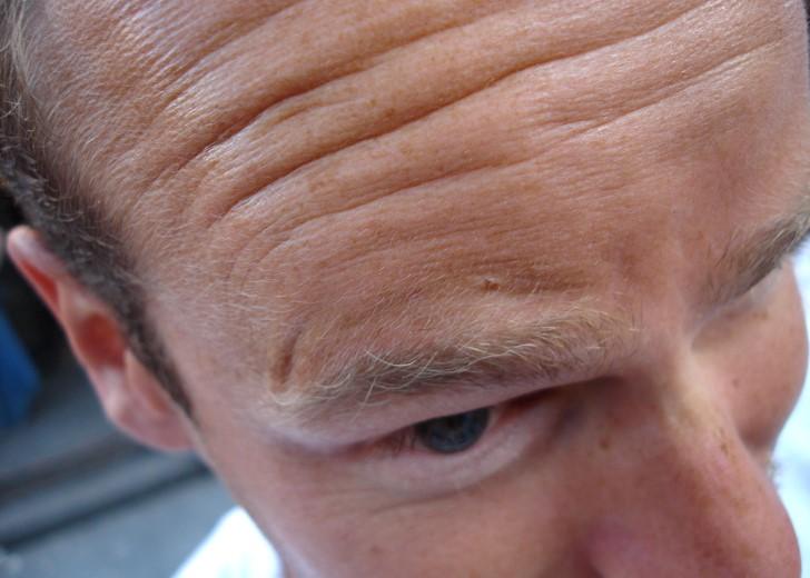 Arrugas en la frente