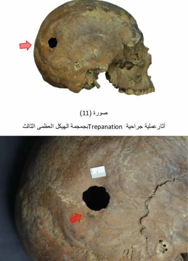 Esqueleto alejandria trepanacion