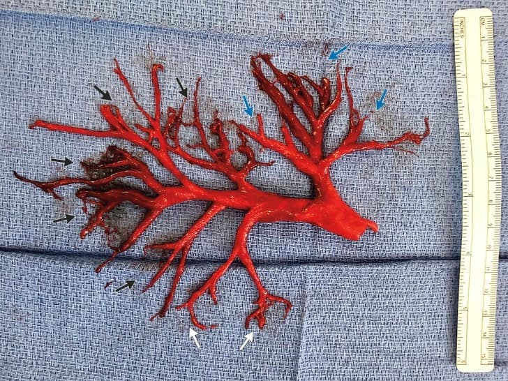 molde del árbol bronquial de un paciente