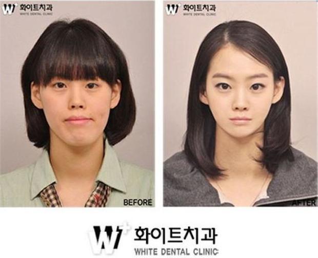 cirugia plastica corea del sur antes despues (1)