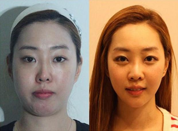 cirugia plastica corea del sur antes despues (10)