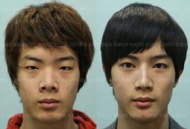 cirugia plastica corea del sur antes despues (12)