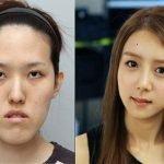 Imágenes increíbles de las cirugías plásticas extremas en Corea del Sur