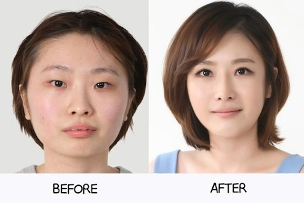 cirugia plastica corea del sur antes despues (16)