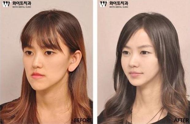 cirugia plastica corea del sur antes despues (2)