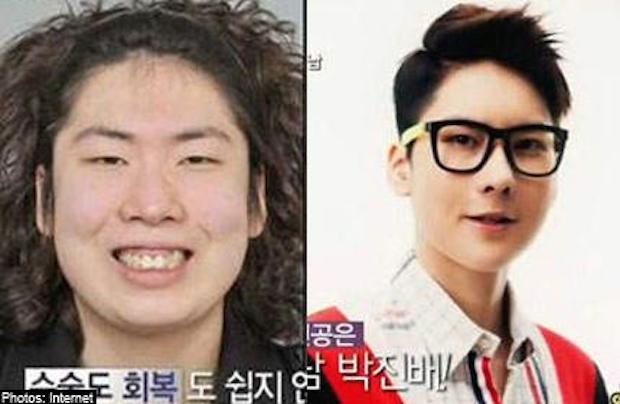 cirugia plastica corea del sur antes despues (5)