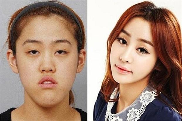 cirugia plastica corea del sur antes despues (6)