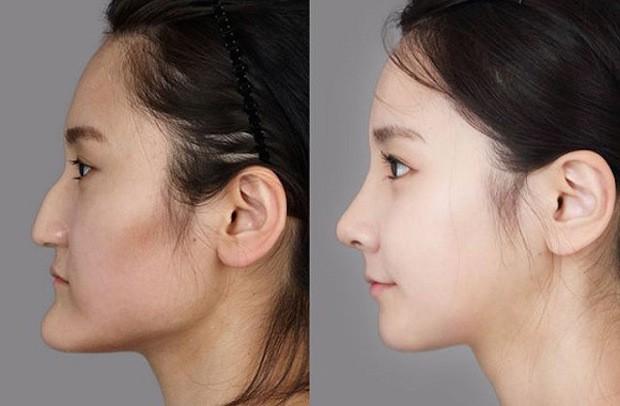 cirugia plastica corea del sur antes despues (9)