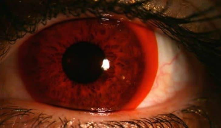 lentes de contacto anaranjados