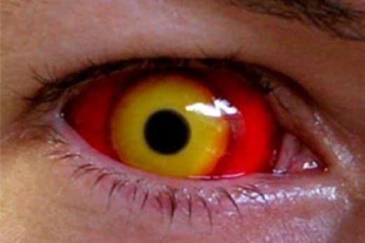 lentes de contacto infeccion ocular