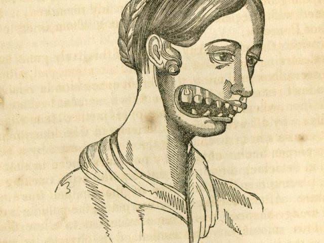 mandibula fosforo