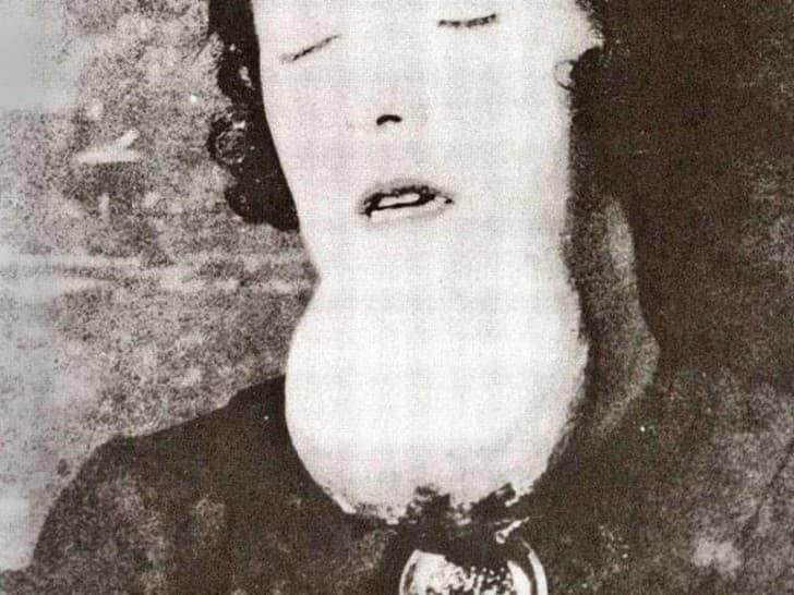 mujer mandibula inflamada