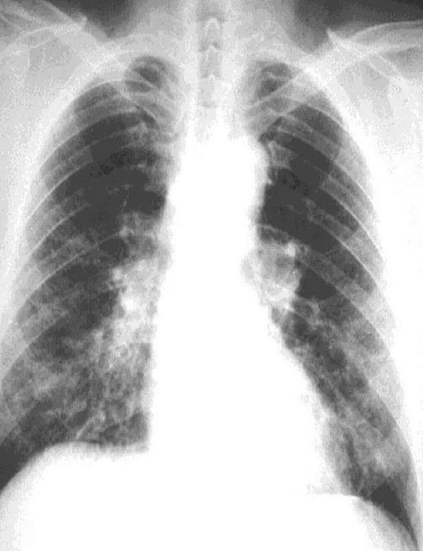 radiografia asbestosis