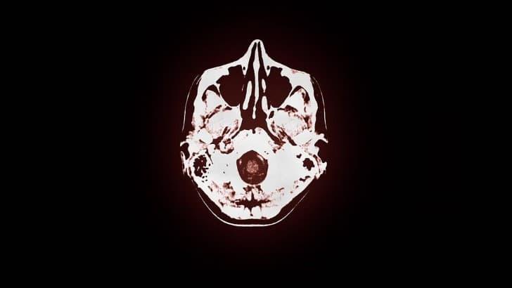tomografia del cerebro humano