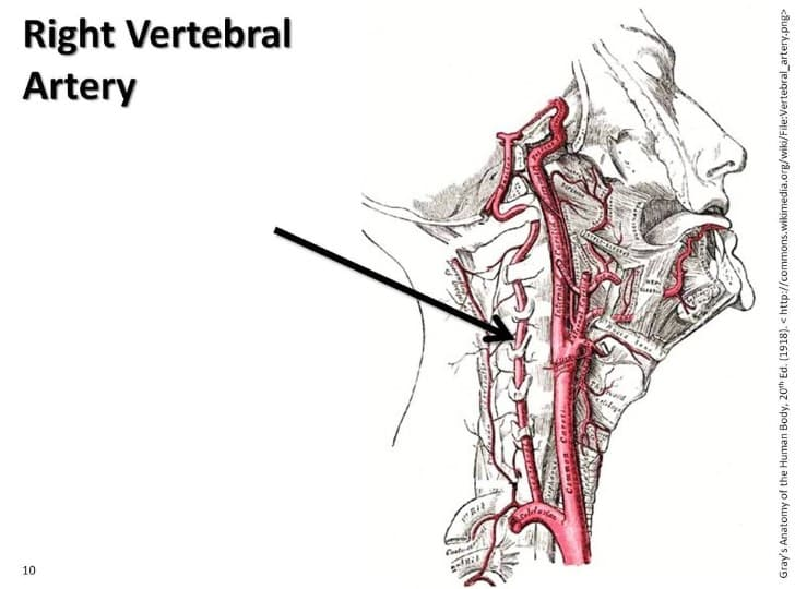 arteria vertebral(1)