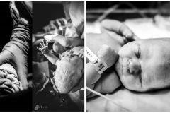 cabeza de bebe despues del parto
