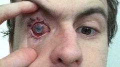 Hombre en Gran Bretaña queda ciego por bañarse con lentes de contacto