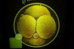 embrion humano tras 40 horas
