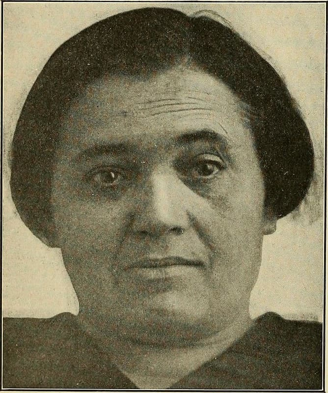 mujer con paralisis facial