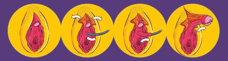 metoidioplastia