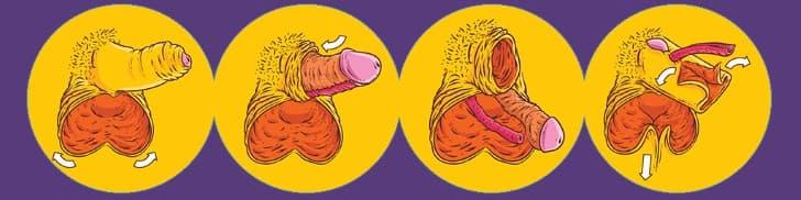 vaginoplastia por inversión peneana
