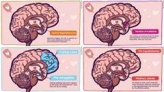 Las reacciones del amor en nuestro cerebro