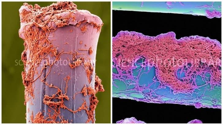 cepillo de dientes bajo el microscopio