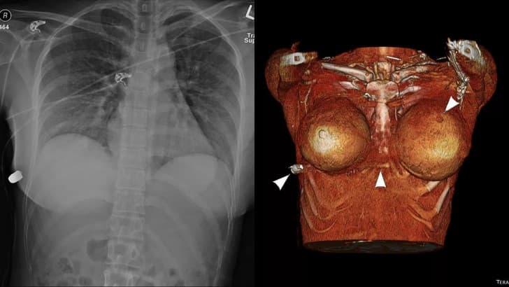 implante mamario desvia bala tomografia