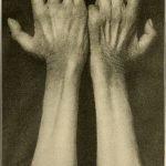 manos enfermedades nerviosas