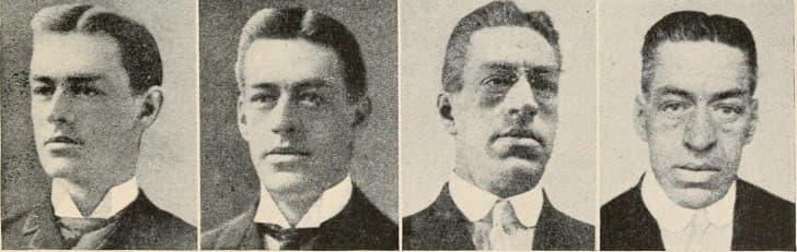 Evolución de un hombre con acromegalia