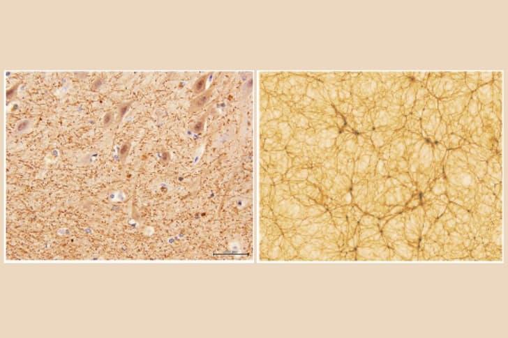 comparacion red de galaxias y red neuronal