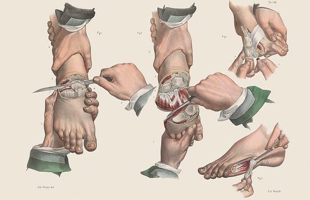 amputaciones en el pie