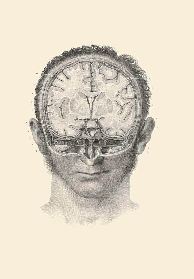 cerebro seccion transversal