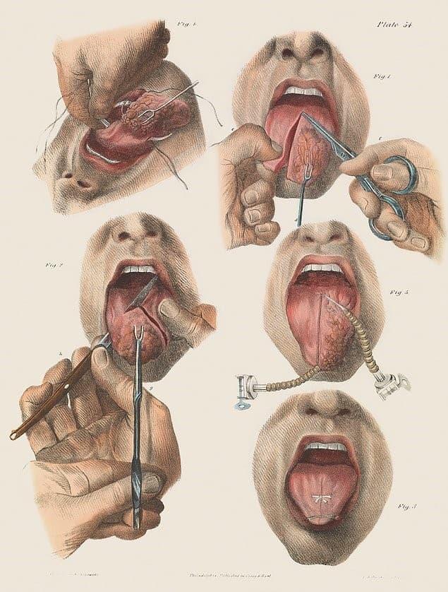 cirugia tumor lengua pasado