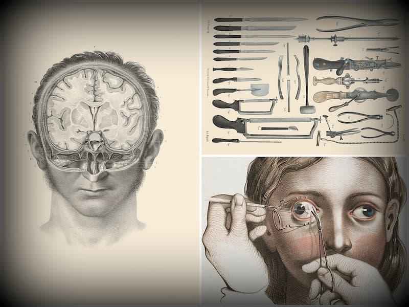 ilustraciones médicas del siglo XIX 2