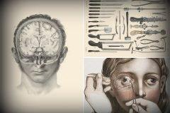 ilustraciones médicas del siglo XIX
